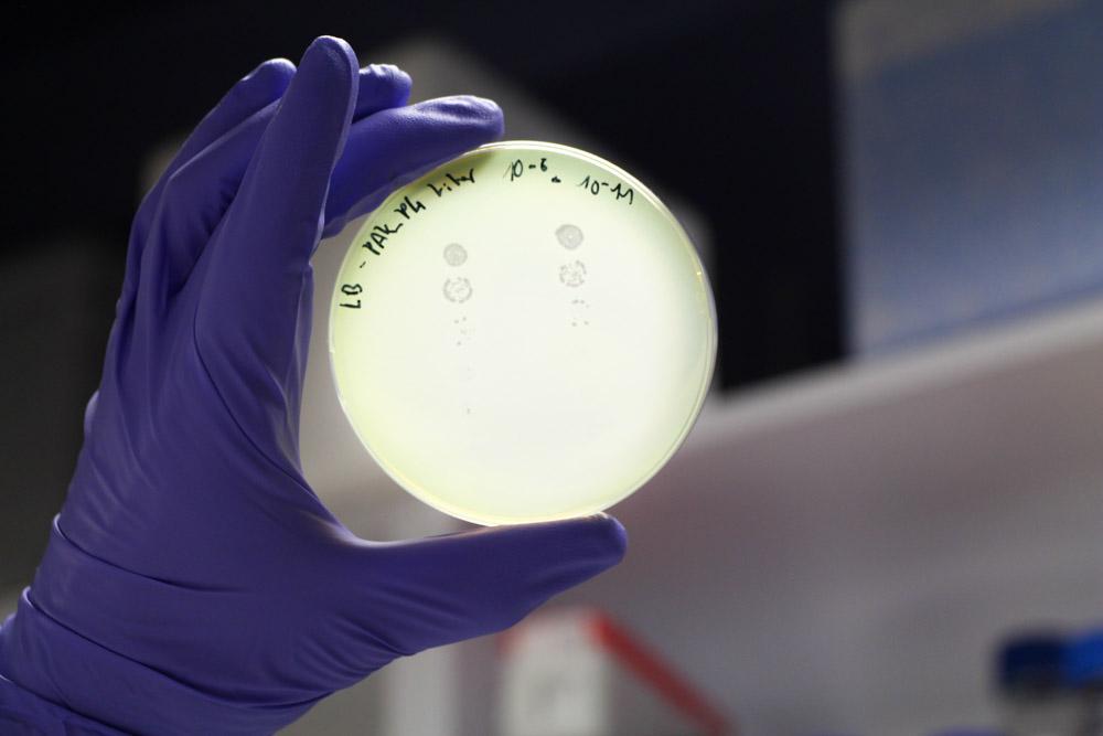 Antibiorésistance, les armes de demain